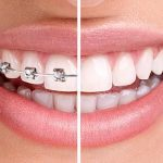 How to find a reliable dentist for braces