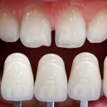 Dental Veneers and Their Types